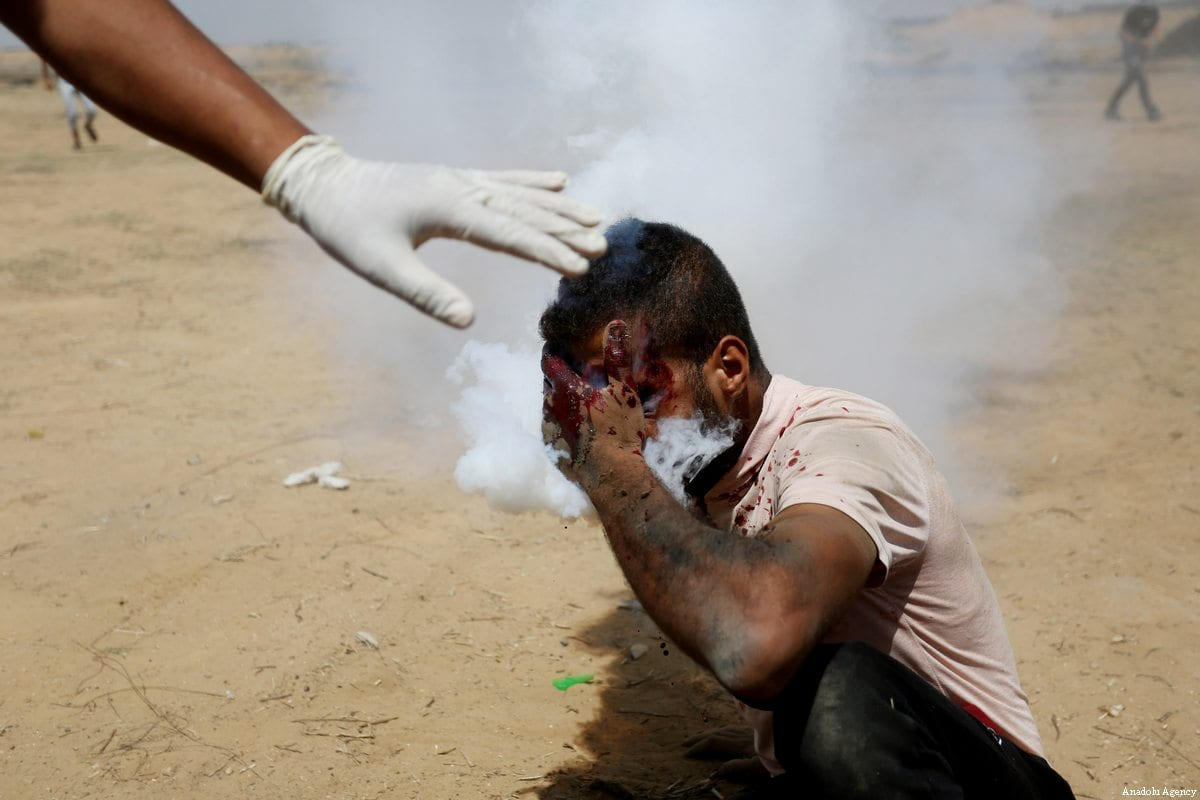 Image result for Tear-gas canister puts Gazan on life support