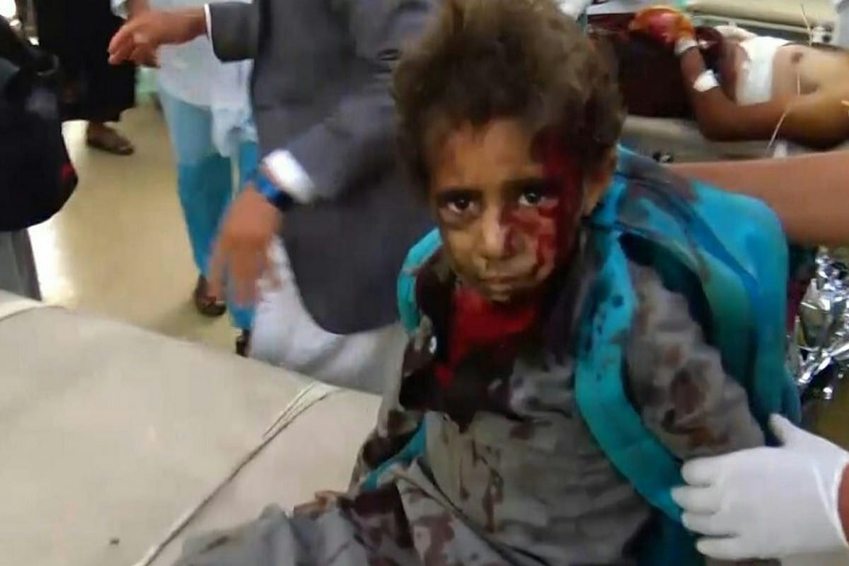An injured child can be seen receiving treatment after Saudi-led coalition carried out air strikes in Yemen on 9 August 2018 [Ansar Allah Media Centre]