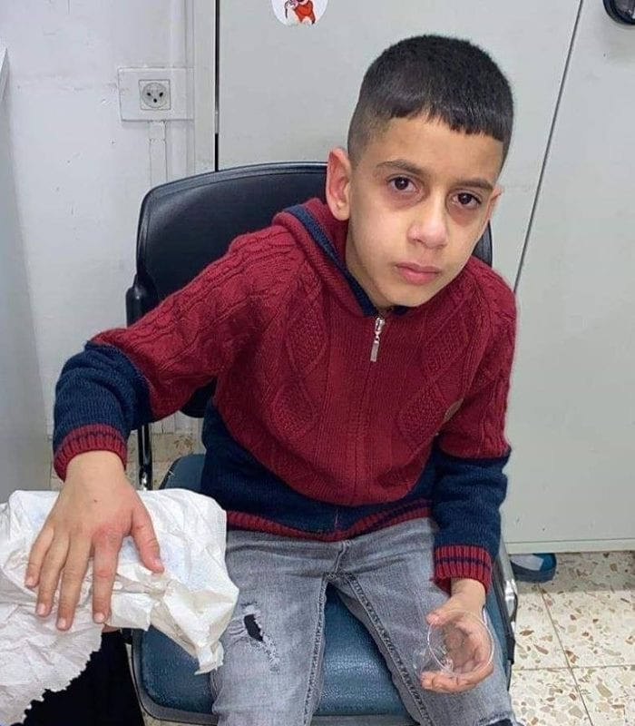 Palestinian child Mohamed Atia was shot by Israeli forces while standing in his schoolyard